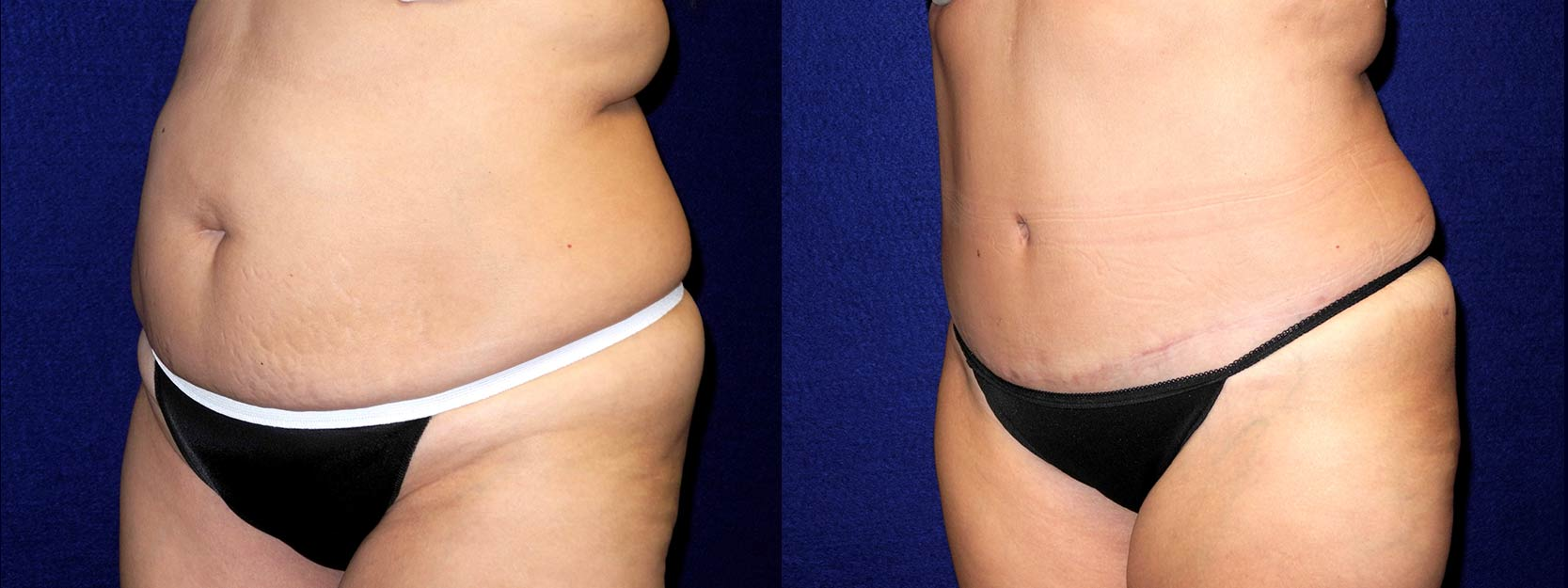 Left 3/4 View - Tummy Tuck and Liposuction