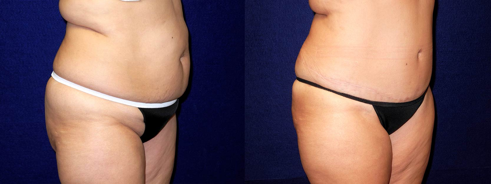 Right 3/4 View - Tummy Tuck and Liposuction