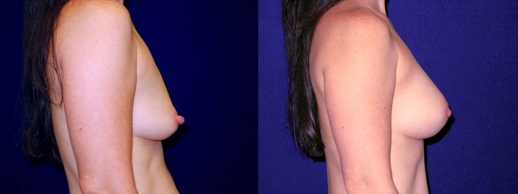 Right Profile View - Breast Augmentation After Pregnancy