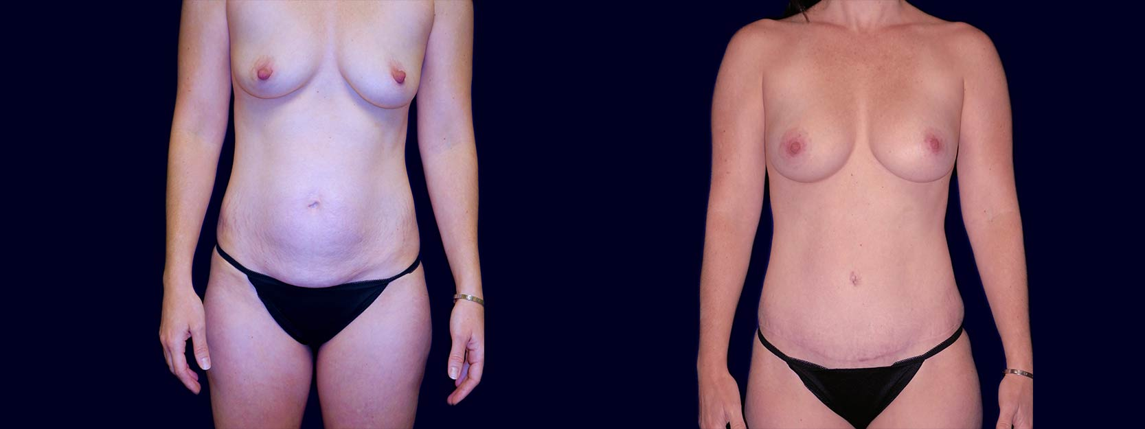 Frontal View - Breast Augmentation and Tummy Tuck After Pregnancy