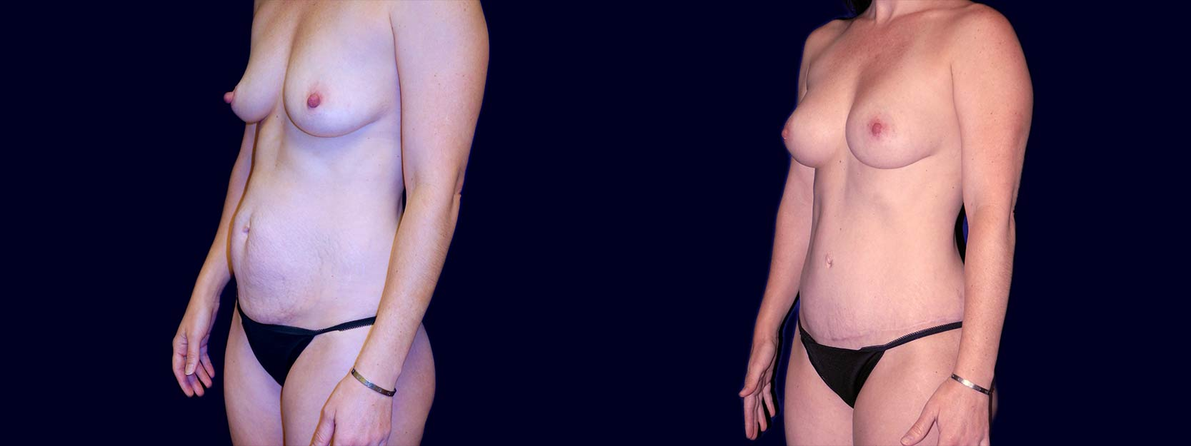 Left 3/4 View - Breast Augmentation and Tummy Tuck After Pregnancy