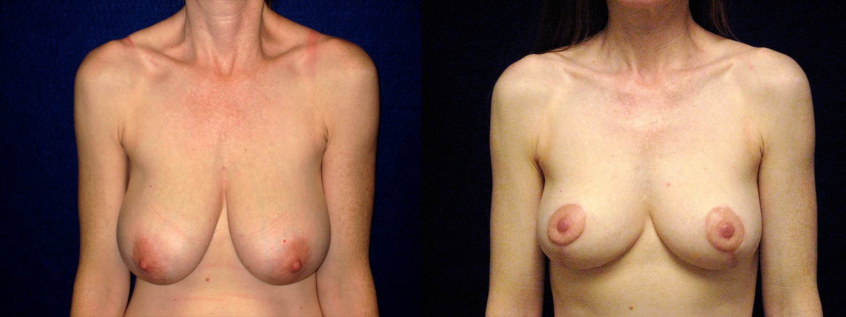Frontal View - Breast Reduction and Lift