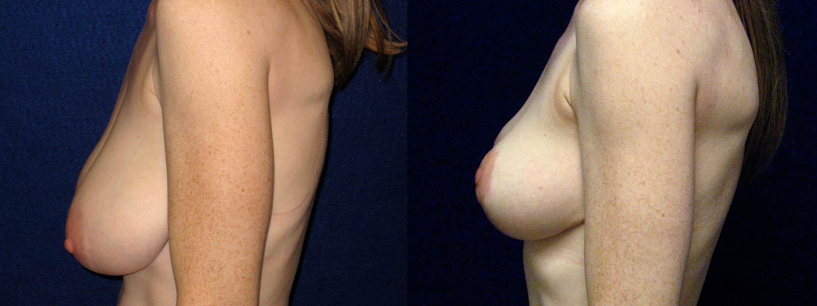 Left Profile View - Breast Reduction and Lift