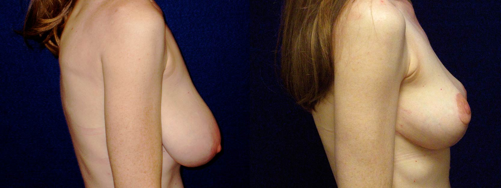 Left 3/4 View - Breast Reduction and Lift