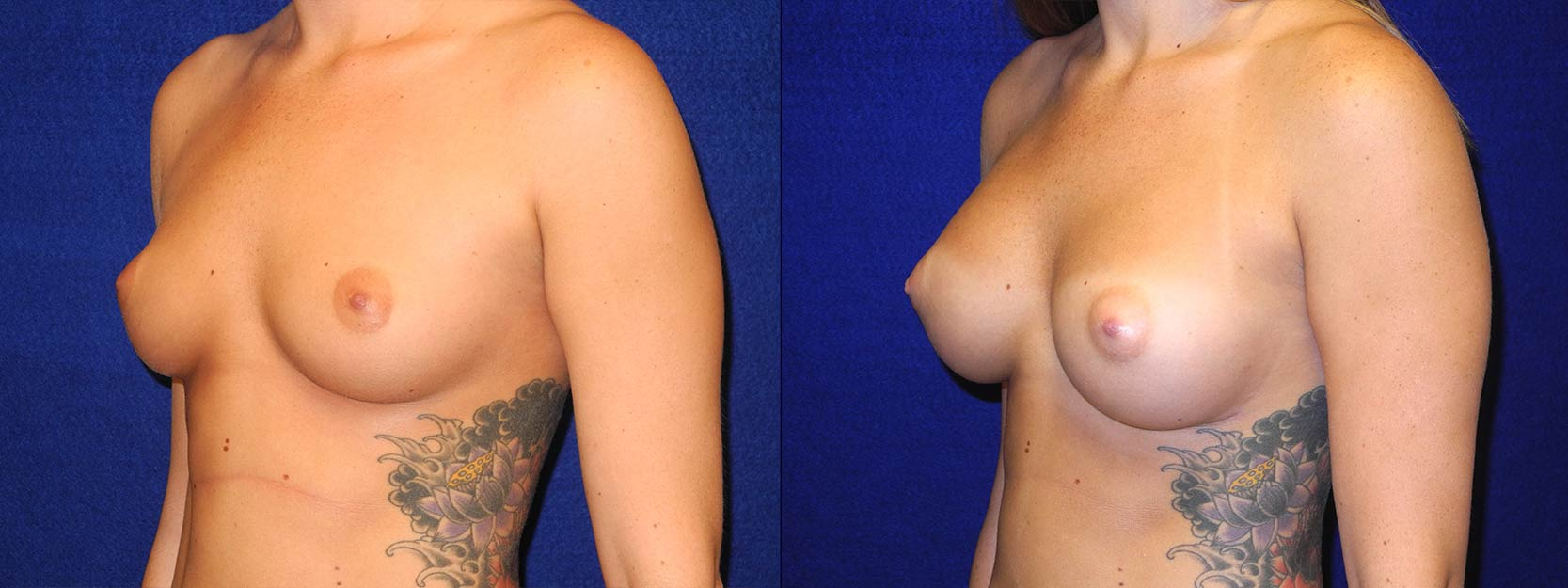 Left 3/4 View - Breast Augmentation - Silicone Implants