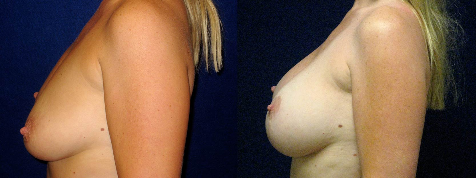 Left Profile View - Breast Augmentation with Lift - Silicone Implants