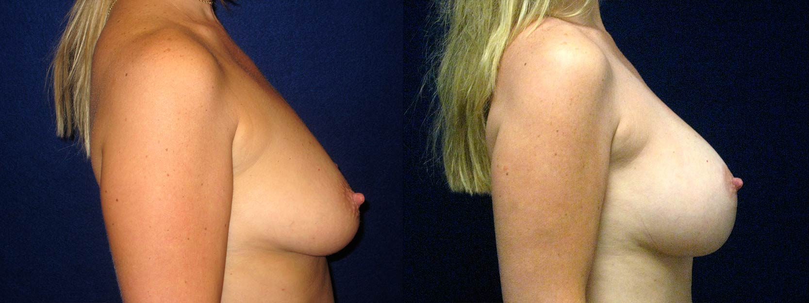 Right Profile View - Breast Augmentation with Lift - Silicone Implants