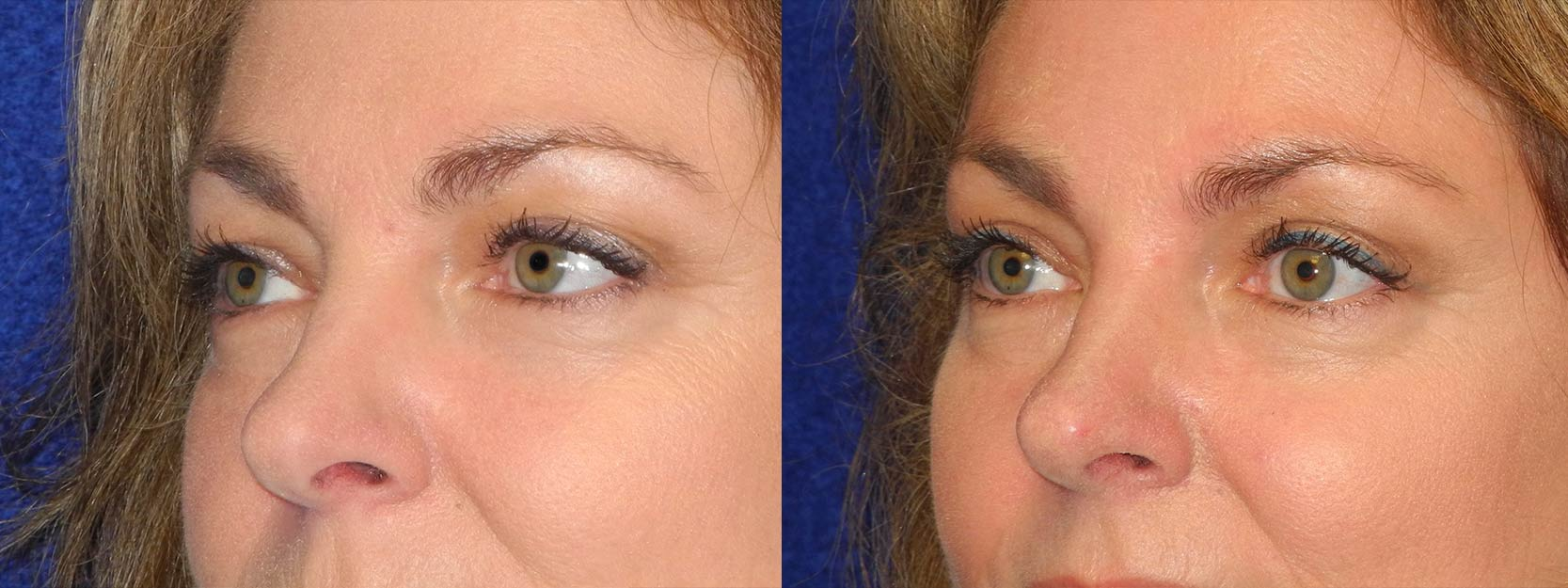 Left 3/4 View - Upper Eyelid Surgery