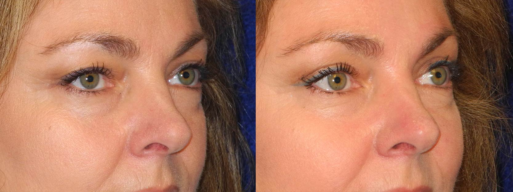 Right 3/4 View - Upper Eyelid Surgery