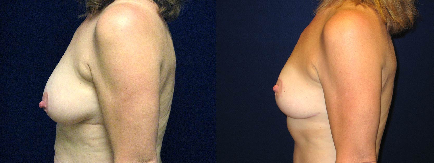 Left Profile View - Breast Lift After Pregnancy