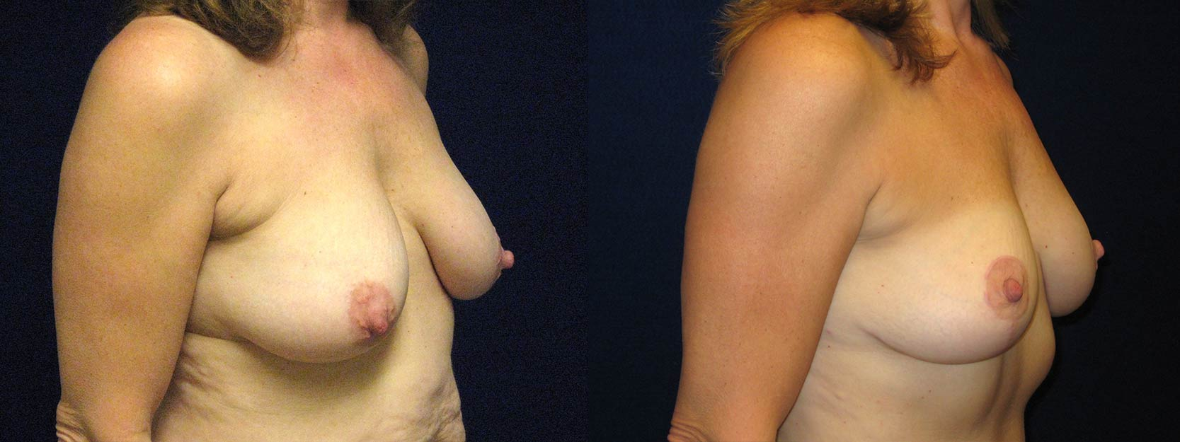 Right 3/4 View - Breast Lift After Pregnancy