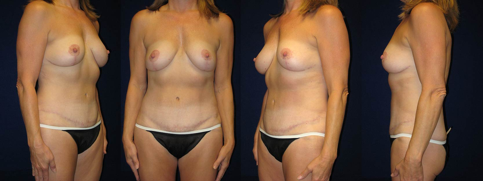 Full View - Breast Lift and Tummy Tuck After Pregnancy