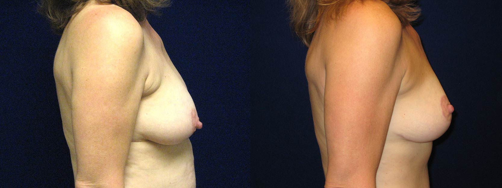 Right Profile View - Breast Lift After Pregnancy