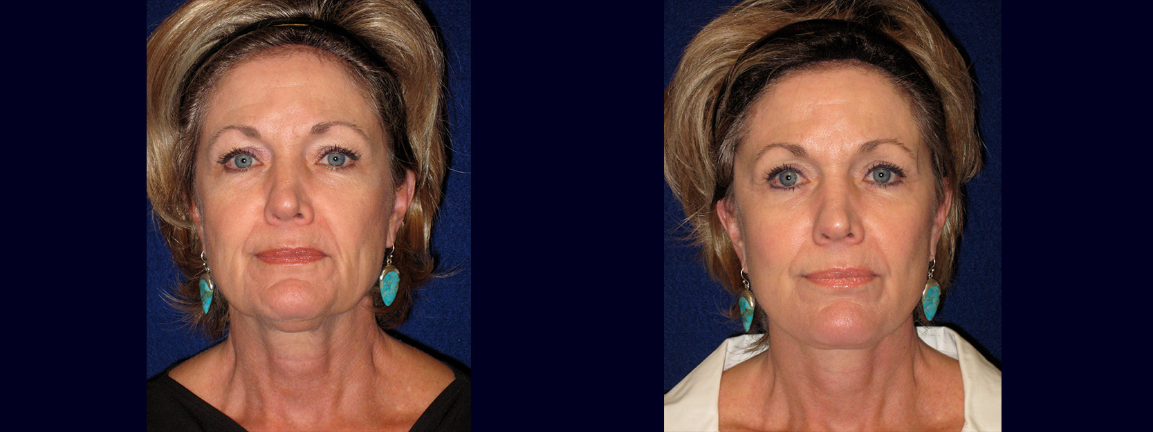 Frontal View - Face and Neck Lift with Upper Eyelid Surgery