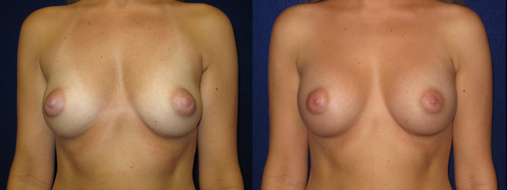 Frontal View - Breast Augmentation - Saline Implants