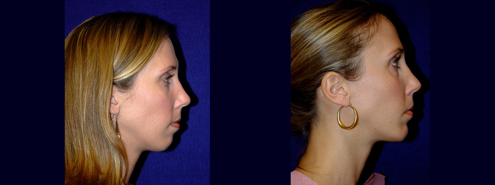 Right Profile View - Chin Implant