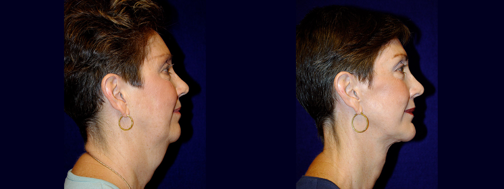 Right Profile View - Facelift & Chin Implant
