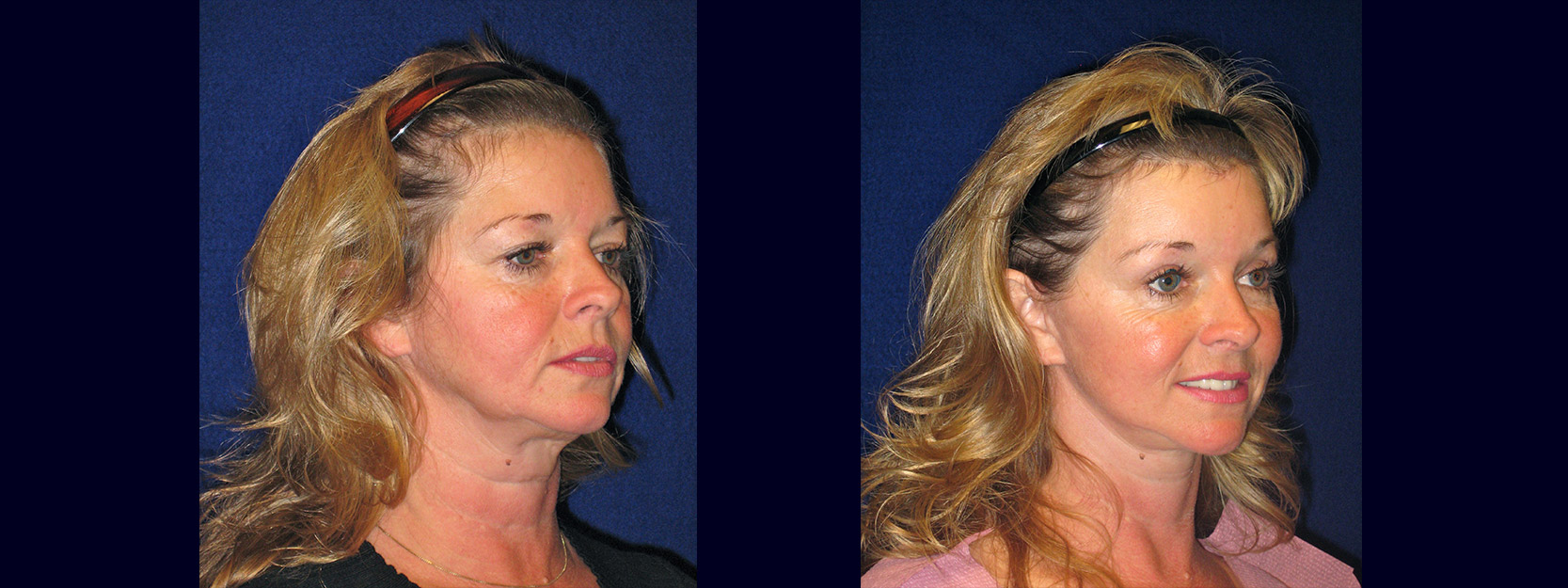 Right 3/4 View - Facelift with Upper and Lower Eyelid Surgery and Browlift