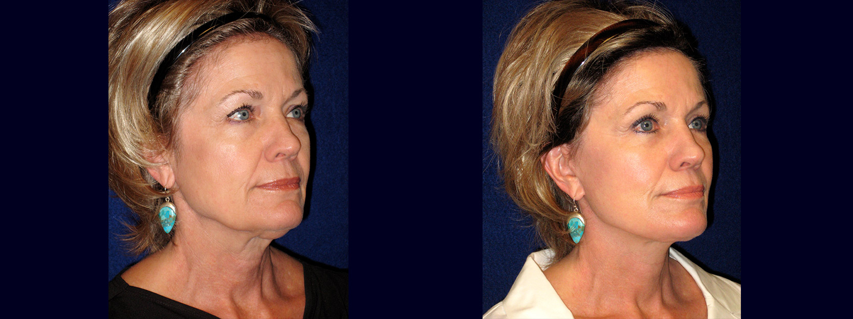 Right 3/4 View - Face and Neck Lift with Upper Eyelid Surgery
