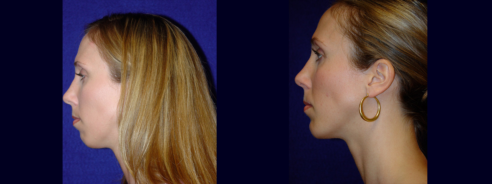 Left Profile View - Chin Implant