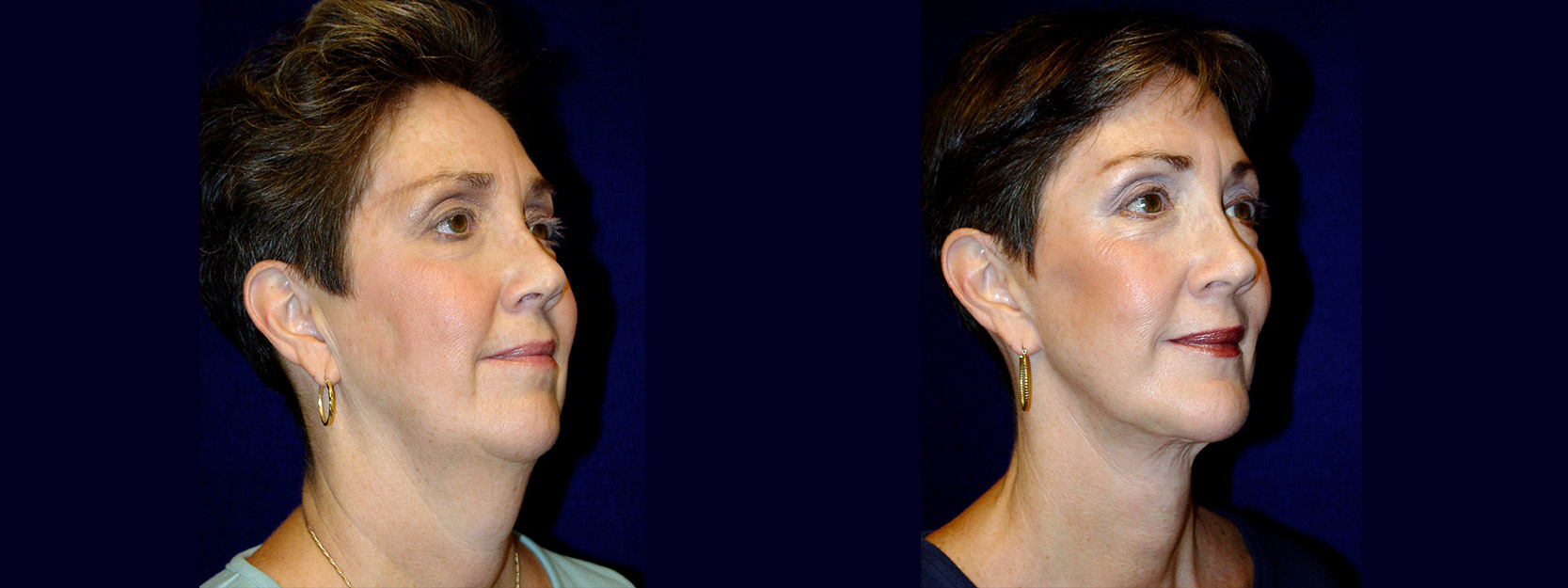 Right 3/4 View - Facelift & Chin Implant