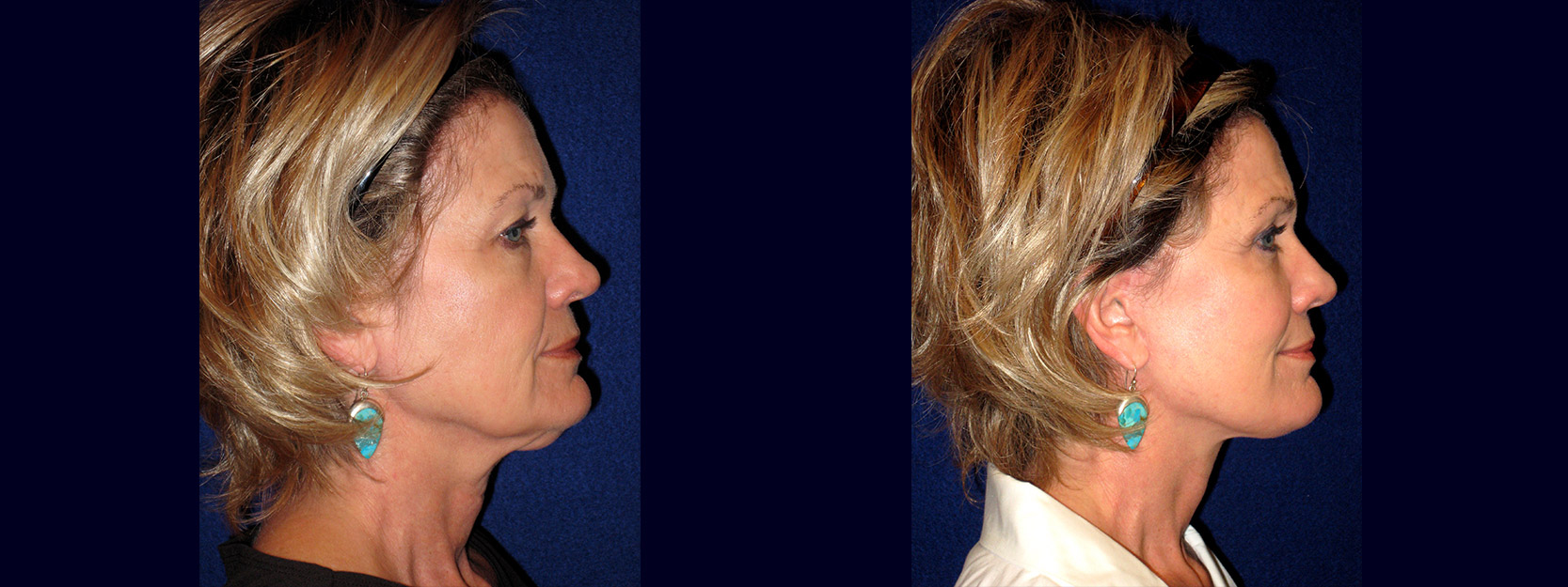 Right Profile View - Face and Neck Lift with Upper Eyelid Surgery