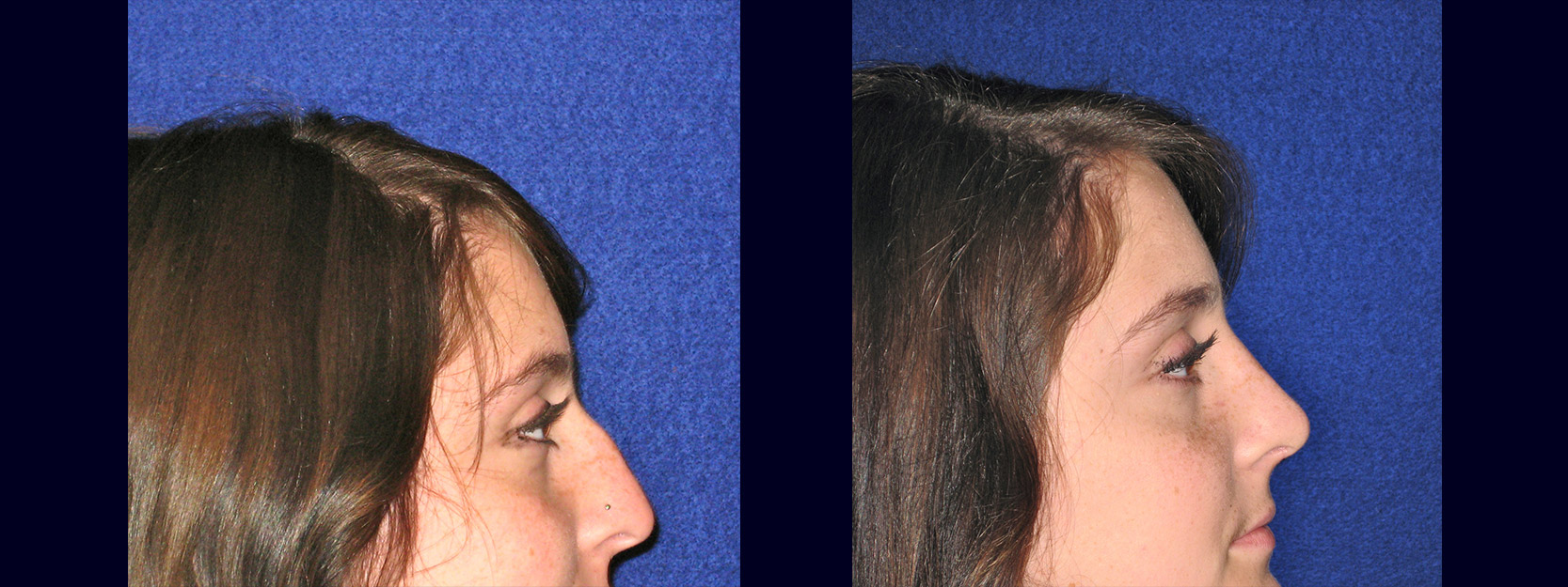 Right Profile View - Rhinoplasty