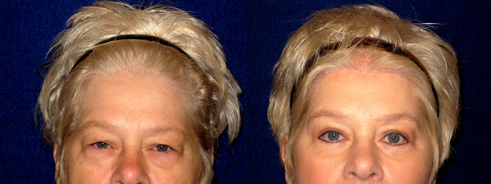 Frontal View - Upper & Lower Eyelid Surgery with Browlift
