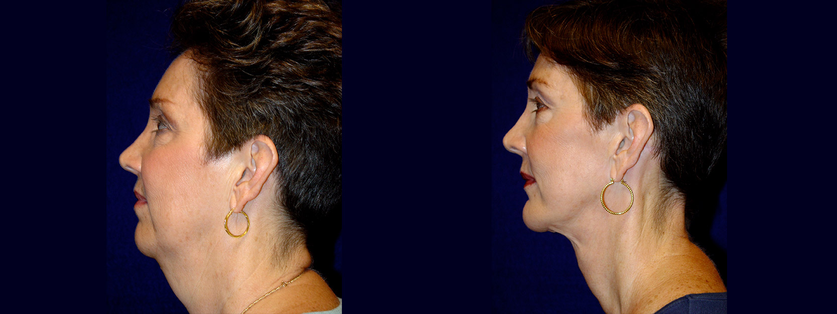 Left Profile View - Facelift & Chin Implant