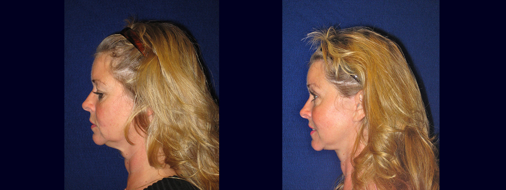 Left Profile View - Facelift with Upper and Lower Eyelid Surgery and Browlift