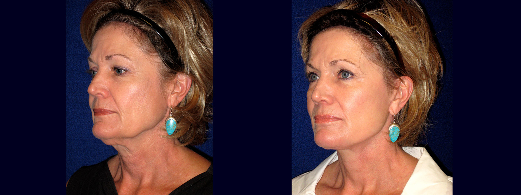 Left 3/4 View - Face and Neck Lift with Upper Eyelid Surgery