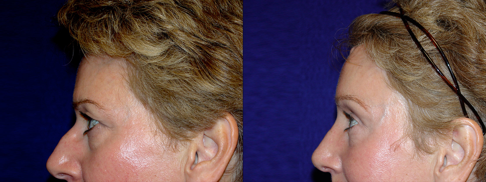 Right Profile View - Browlift and Rhinoplasty