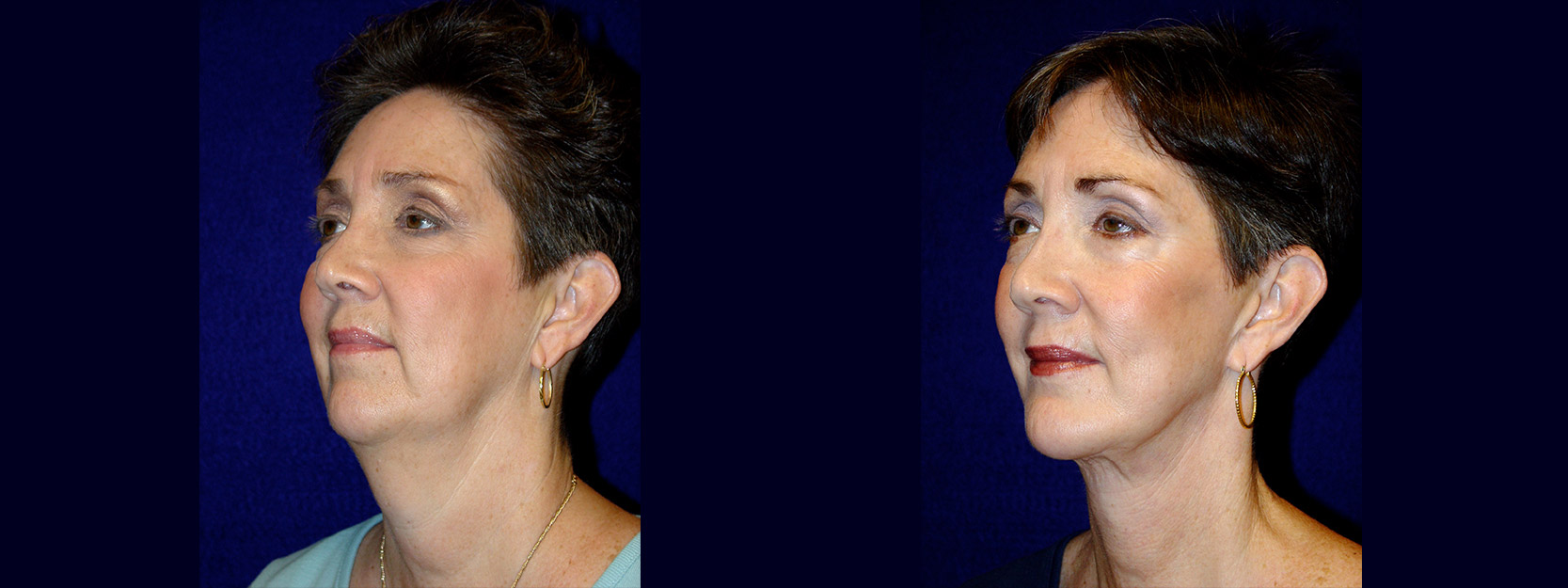 Left 3/4 View - Facelift & Chin Implant