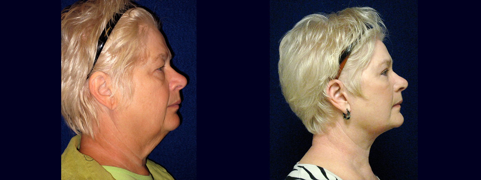 Right Profile View - Facelift with Upper and Lower Eyelid Surgery and Browlift