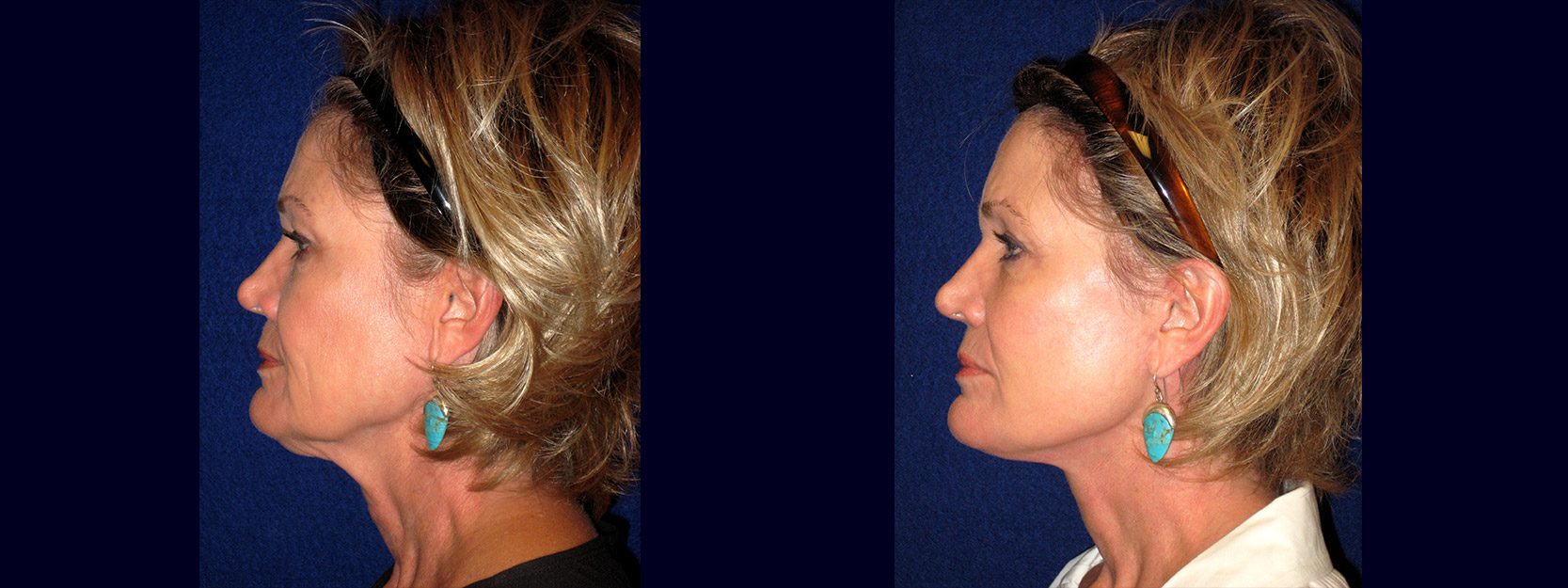 Left Profile View - Face and Neck Lift with Upper Eyelid Surgery