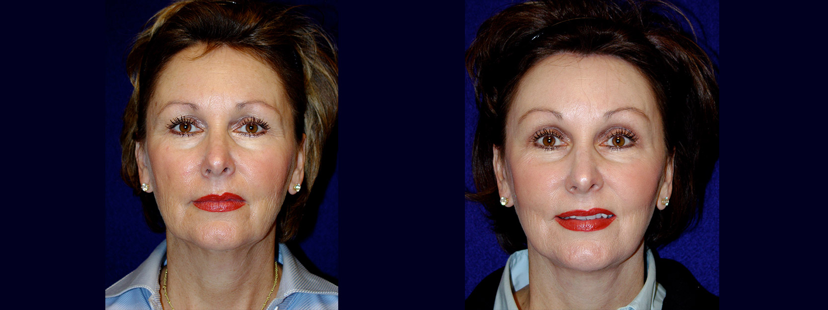 Full Frontal View - Facelift with Upper Eyelid Surgery and Browlift