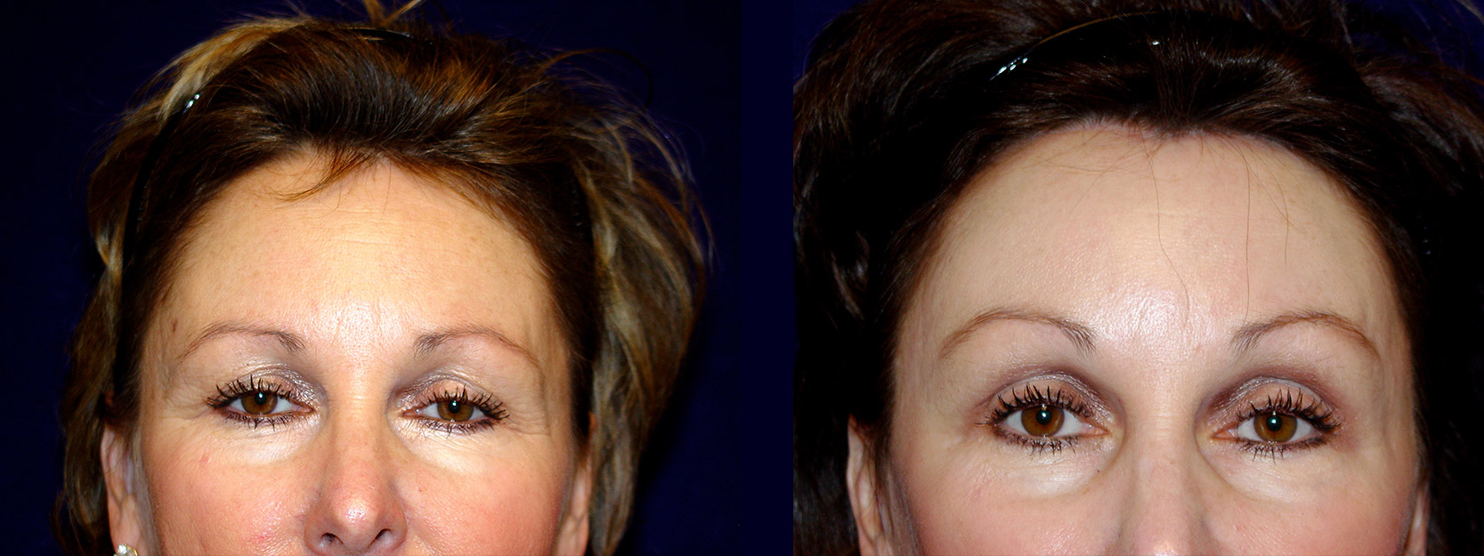 Frontal View - Upper Eyelid Surgery and Browlift