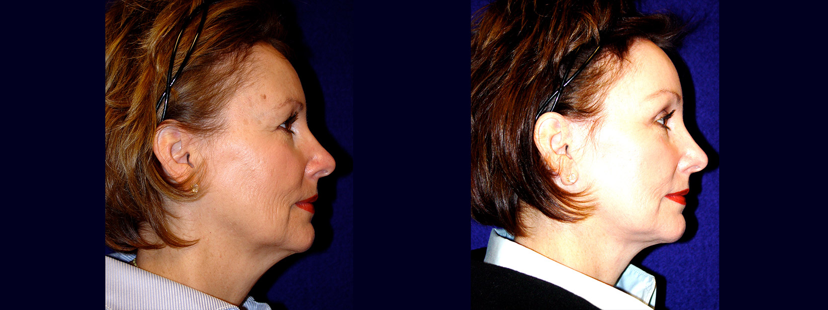 Full Right Profile View - Facelift with Upper Eyelid Surgery and Browlift
