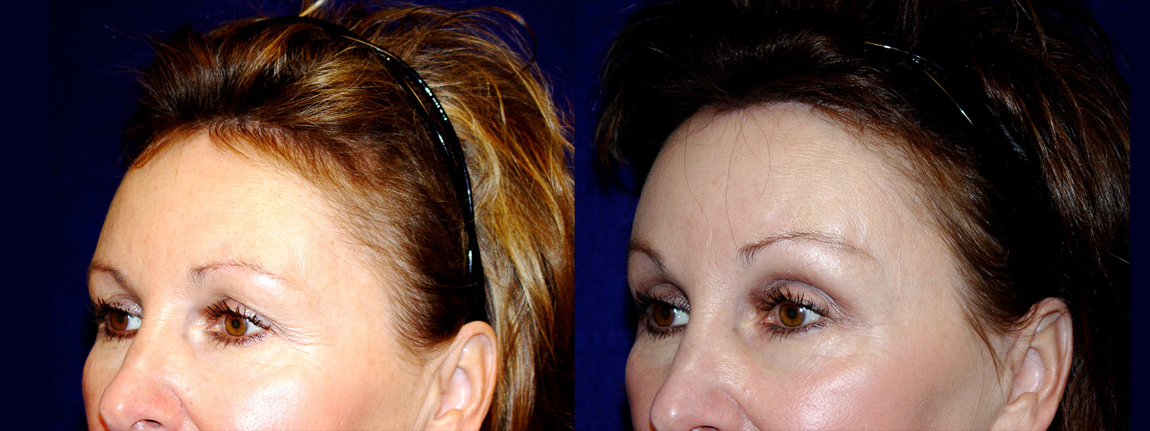 Left 3/4 View - Upper Eyelid Surgery and Browlift