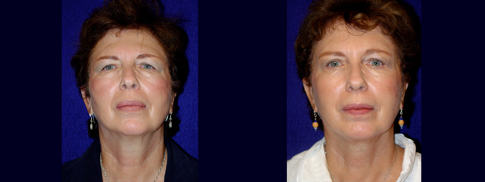 Frontal View - Facelift with Upper and Lower Eyelid Surgery and Browlift