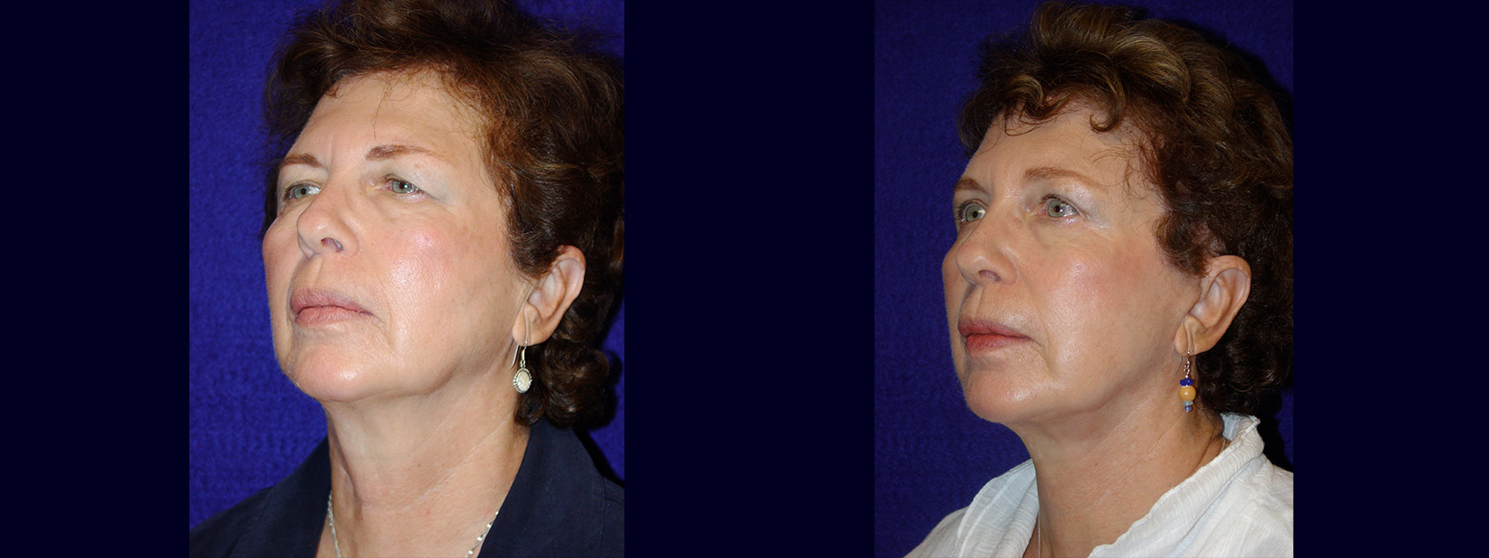 Left 3/4 View - Facelift with Upper and Lower Eyelid Surgery and Browlift