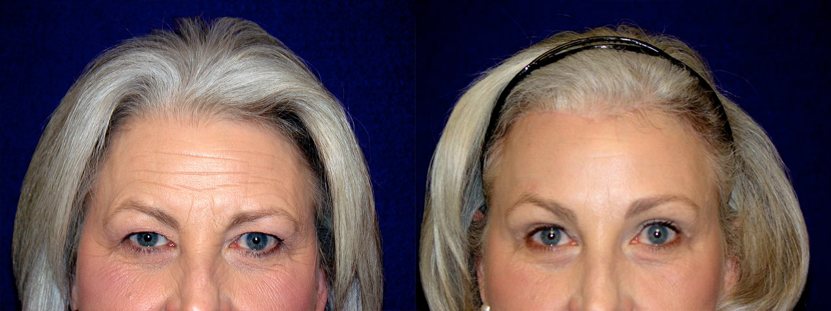 Fontal View - Upper Eyelid Surgery with Browlift