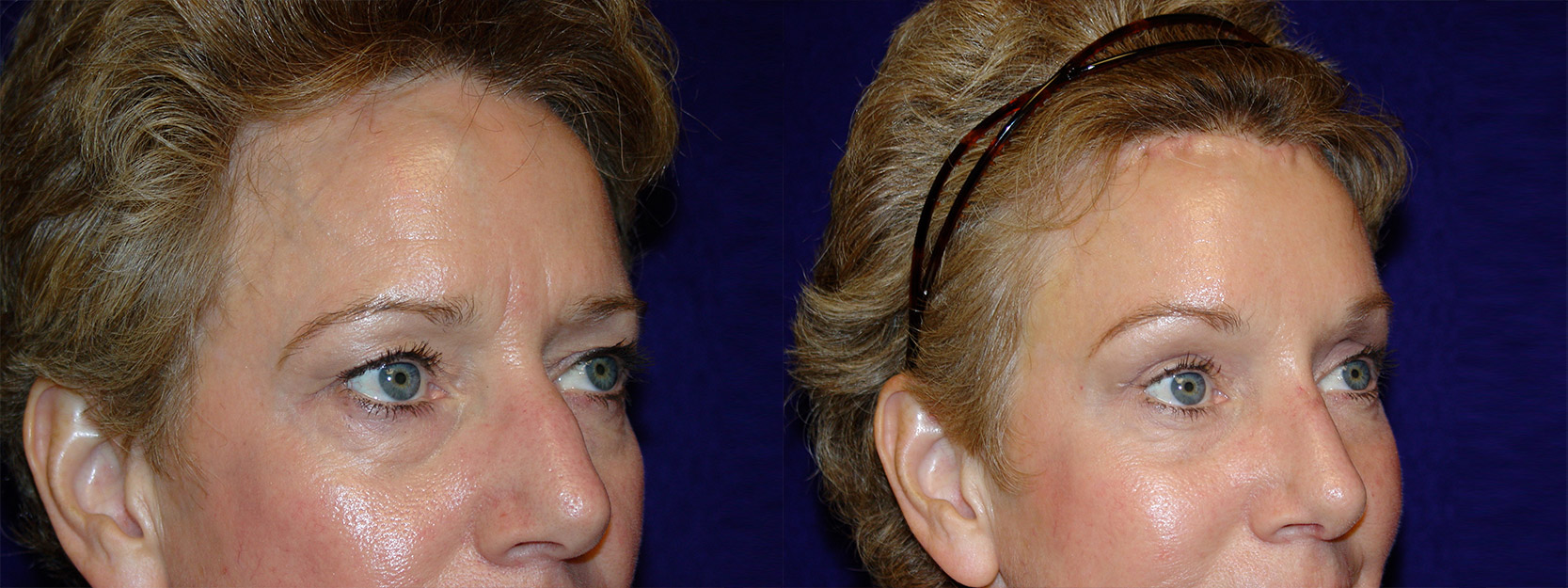 Right 3/4 View - Browlift and Rhinoplasty