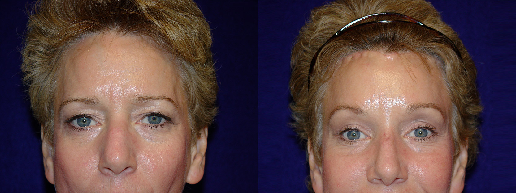 Frontal View - Browlift and Rhinoplasty