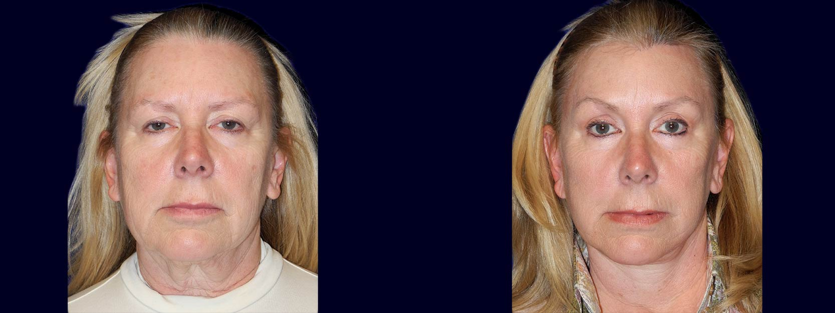 Frontal View - Facelift, Eyelid Surgery, & Browlift