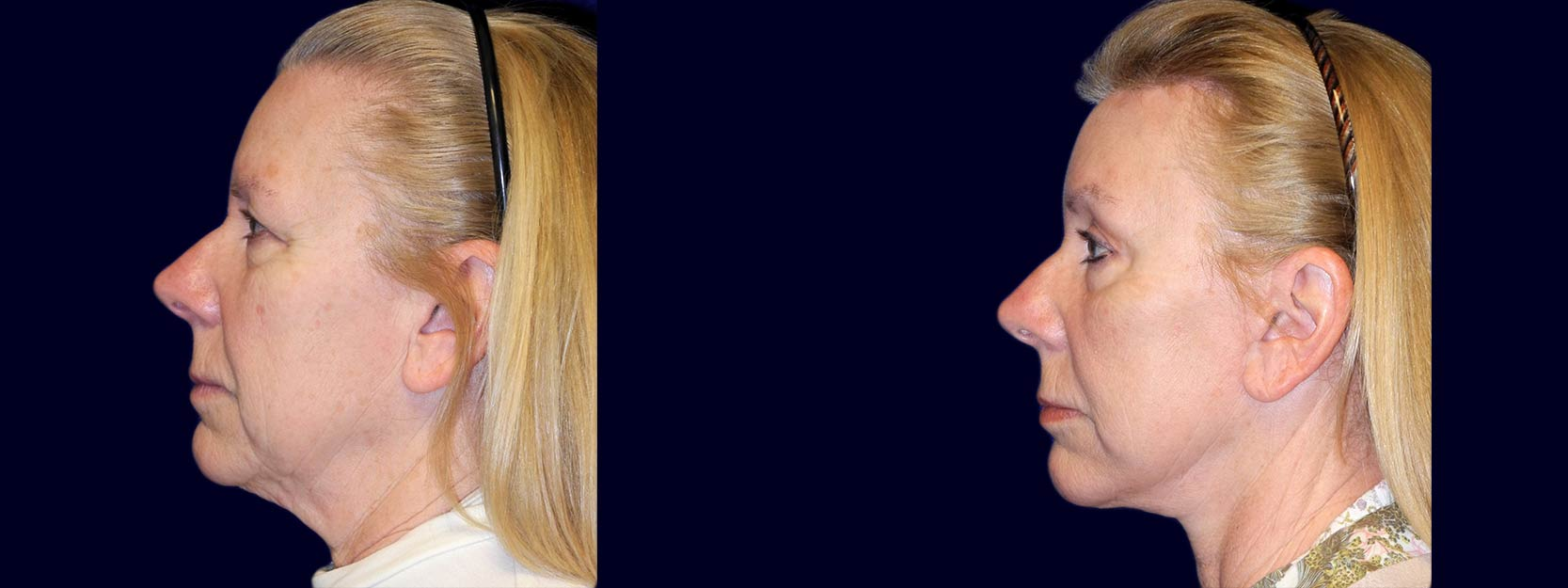 Left Profile View - Facelift, Eyelid Surgery, & Browlift