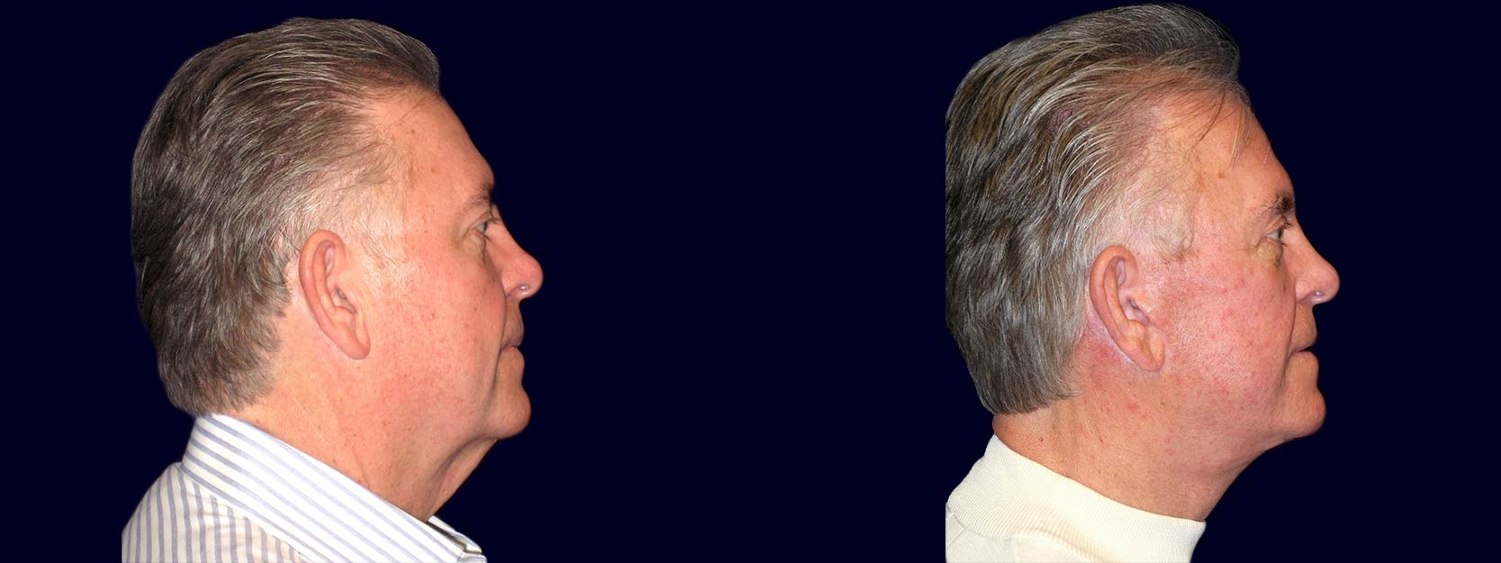 Right Profile View - Facelift, Eyelid Surgery, & Browlift