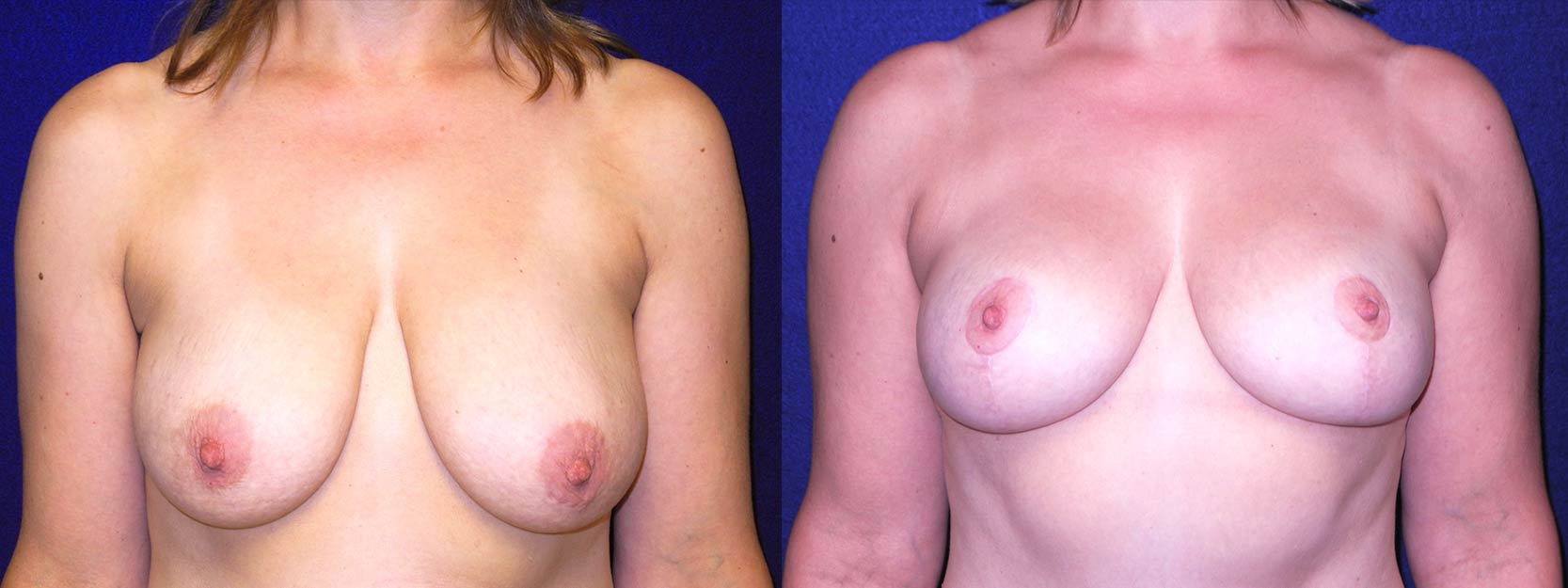 Frontal View - Breast Lift After Pregnancy & Weight Loss