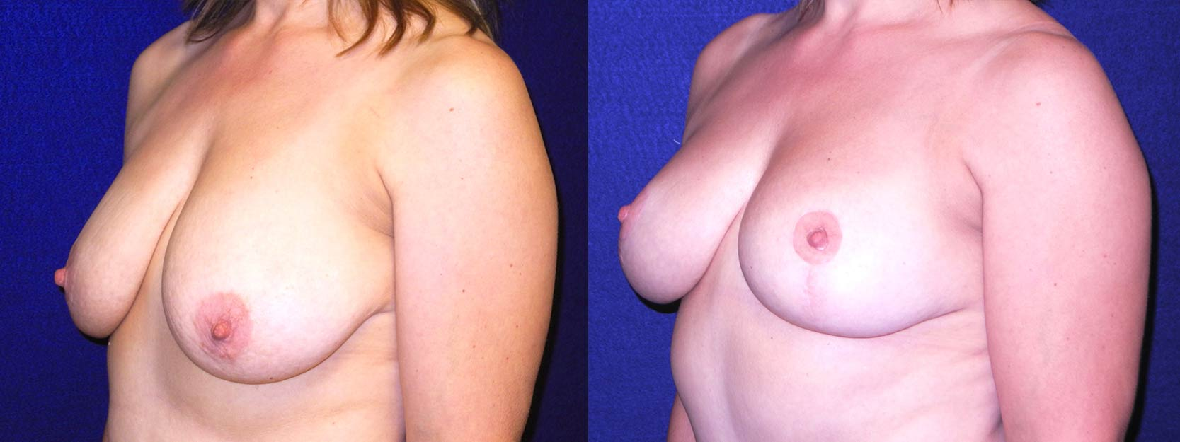 Left 3/4 View - Breast Lift After Pregnancy & Weight Loss