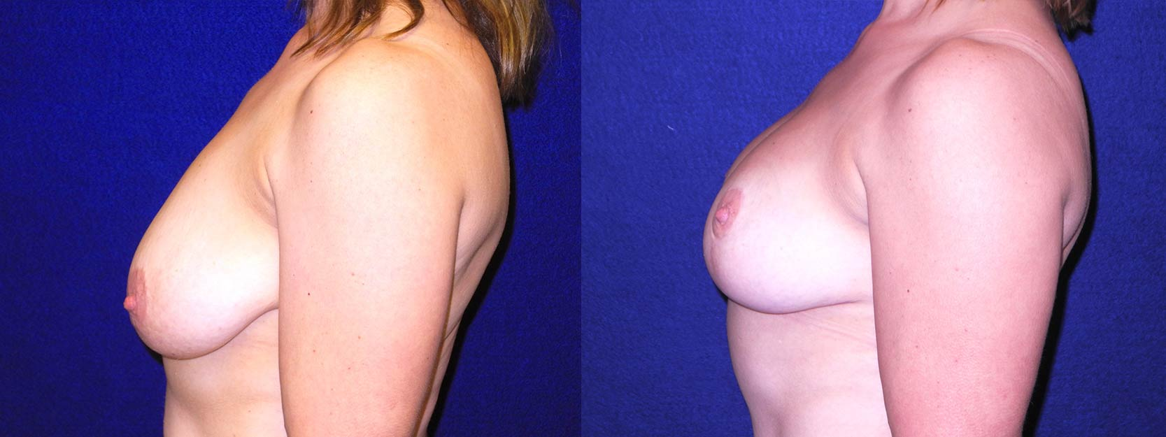 Left Profile View - Breast Lift After Pregnancy & Weight Loss